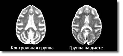 Скан мозга двух макак – обычной и на диете