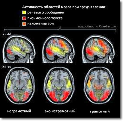 Чтение — сложнейшее упражнение для мозга. У грамотного человека при распознавании текста значительно более интенсивно начинает работать зрительная зона коры головного мозга, активируются области, ответственные за обработку звуковой информации, и одновременно включаются несколько других мозговых центров.