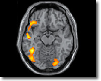 Особо интенсивно при чтении работают зоны в височной и затылочной доле коры левого полушария мозга. Наиболее же важной для чтения оказалась область схождения затылочной и височных долей.